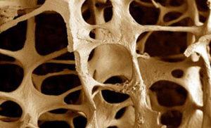 диффузный остеопороз позвоночника