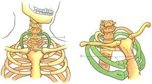 Шейные ребра