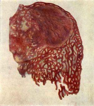 Остеоидная часть опухоли