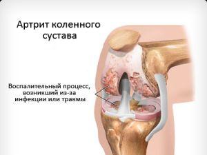 гнойный артрит коленного сустава