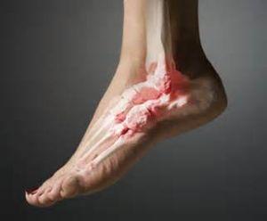 Воспаление сухожилий стопы