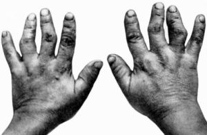 руки пациента
