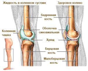 Здоровое и больное колено