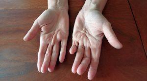 контрактура пальцев