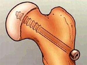 Юношеский эпифизеолиз головки бедренной