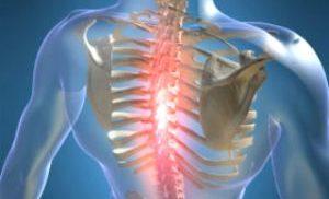 остеохондроз грудного отдела