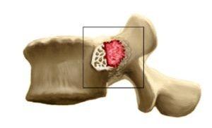 Остеобластома позвоночника
