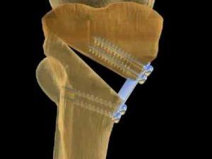 остеотомия бедра