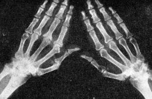 Диагностика диффузный остеопороза позвоночника