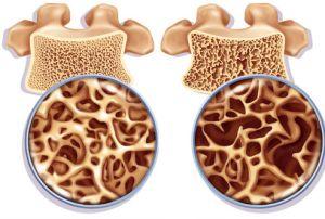 Помощь при остеопорозе