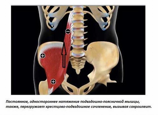 Причины сакроилеита