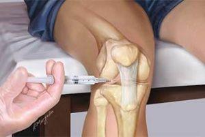пункция колена