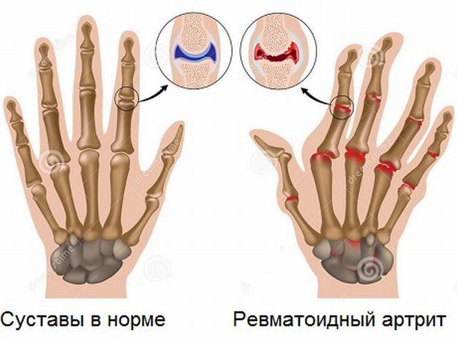 Симптомы артрита ревматоидного