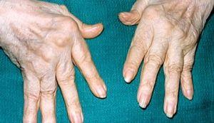 болезнь артрит