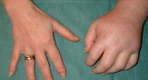 Синдром зудека симптомы