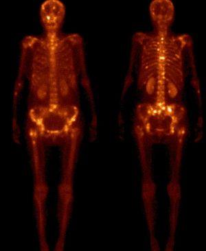 патологии позвоночника на сканирвоании костей