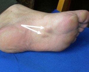 контрактура пальцев стопы