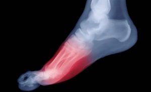 тендините сухожилий стопы