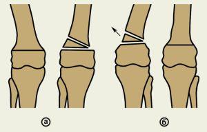 остеотомия при деформациях