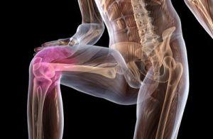 нарушения в коленном суставе