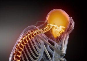 шейно черепной синдром