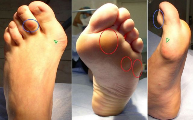 деформирующий остеоартроз стопы