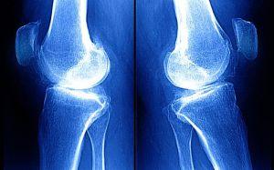 деформирующий остеоартрит