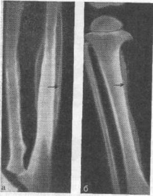 гиперостоз костей