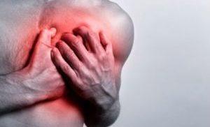 Радикулит грудной
