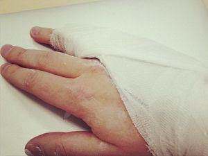 перелом мизинца на руке