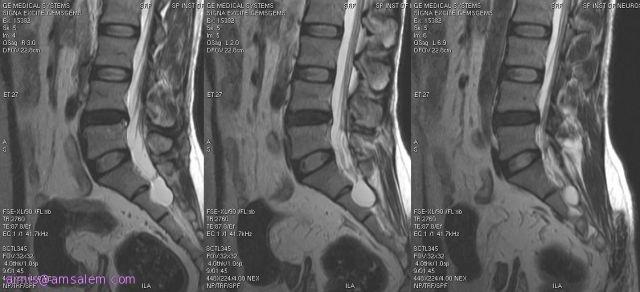 периневральная арахноидальная киста позвоночника