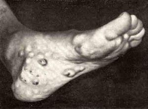 наросты, характерные для синдрома маффуччи
