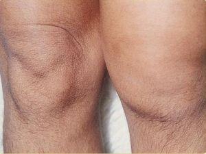 Опухоль колена
