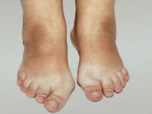 остеоартроз при травме стопы