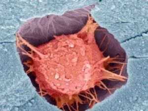 Регенерация ткани костной