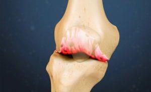 Остеофиты в колене