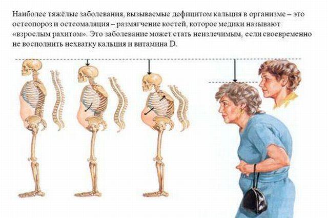 остеомаляция и остеопороз