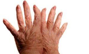 полиартроз кистей рук