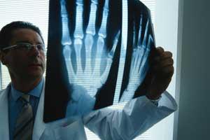 Рентген при артрозе