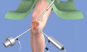 синовэктомия коленного сустава