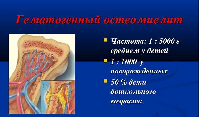 Стастика остеомиелита