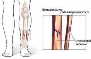 усталостный перелом большеберцовой кости