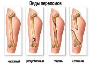 виды переломов бедра