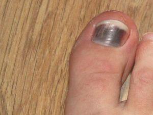 гематома на ноге после удара