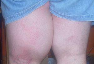 синовиома коленного сустава