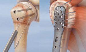 остеосинтез методика сращения костей