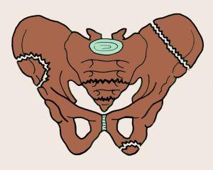 перелом костей таза