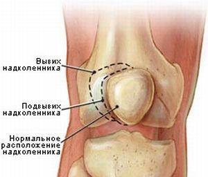 Подвывих колена