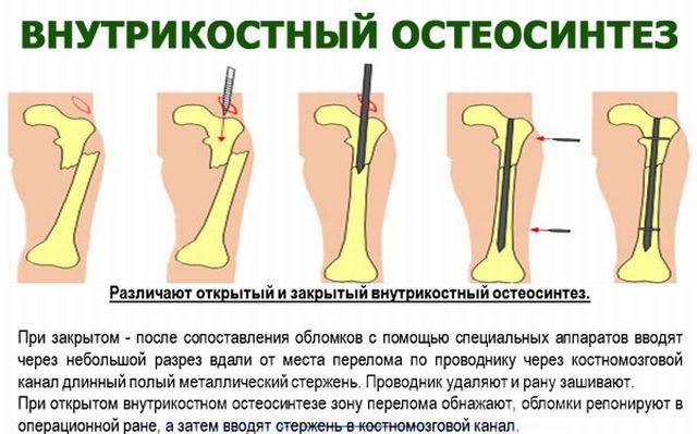 Внутрикостный остеосинтез
