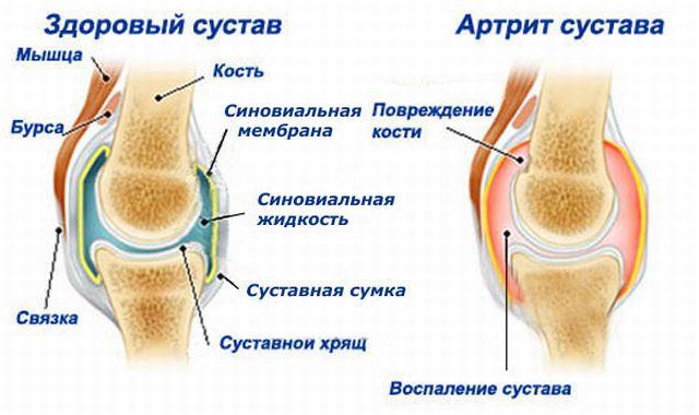 как развивается артрит